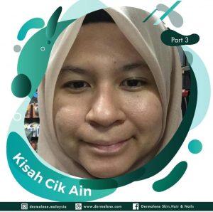 Klinik Kulit Shah Alam Kisah 4